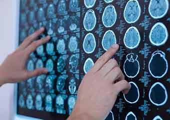 Brain Change and Mindfulness . . . In 8 Weeks?